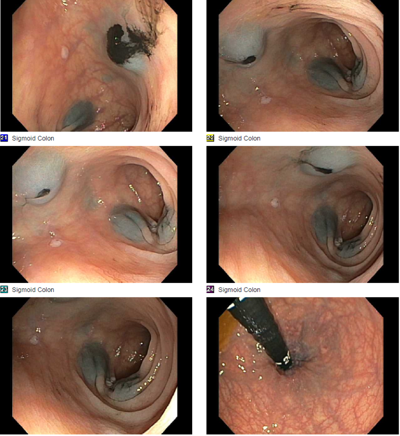 Endoscopic Marking For Colorectal Cancer And Large Polyps Ddw 2018